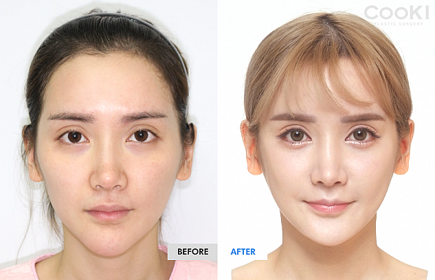 韓国 顎 整形