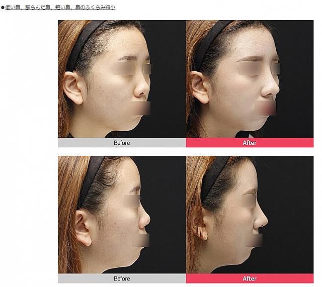鼻整形 値段 韓国