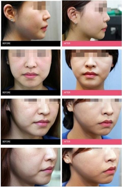 脂肪 注射 顔 溶解