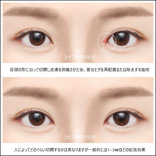 目 を 大きく する 整形