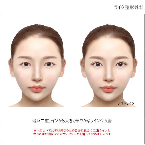 大きく 目 整形 黒目整形 ¥200,000(両目)